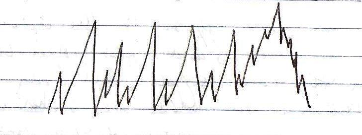 ekg complex diagram